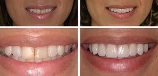 التصميم الرقمي .. التقنية الأحدث في عالم تجميل الأسنان