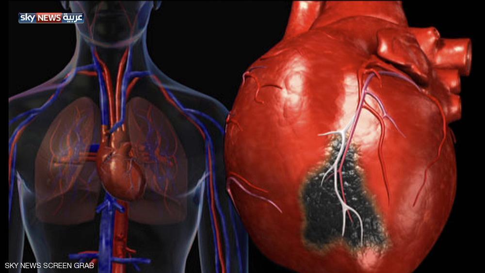 صحة قلبك مرتبط بمهنتك