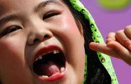 دراسة تكشف حقيقة الرابط بين الجينات وتسوس أسنان الأطفال