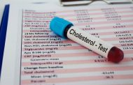 خفض مستوى الكوليسترول في سن مبكرة يقلل هذه الأمراض