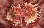 جامعة الإمارات: فيروس يتسبب في أكثر من 250 ألف حالة سرطان